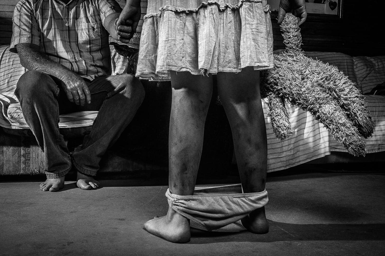 A cada 4 horas uma menina é estuprada por um de seus parentes