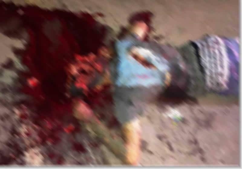 CRUELDADE – Homem é assassinado a golpes de terçado que desfigurou crânio no município de Maués